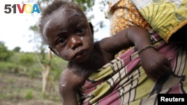 A child from Bunia in eastern Democratic Republic of Congo suffering from chickenpox is carried by her mother at the Kyangwali refugee settlement in Hoima district in Western Uganda, March 25, 2014. (REUTERS/Thomas Mukoya)