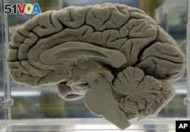 This cross-section of a brain shows its folds and sections. Each section is responsible for an activity or ability. (AP FILE PHOTO)