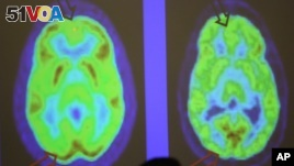 PET scanners displays areas of the body in different colors to show disease and conditions. A new PET scanner shows the entire body at once, rather just its parts, like the brain.